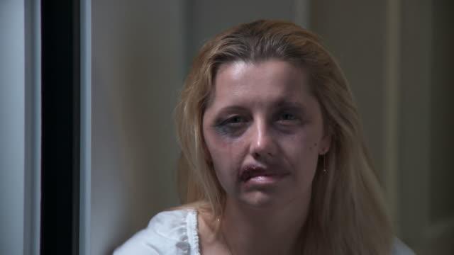 dolly hd: missbraucht frau mit hoffnung - blauer fleck stock-videos und b-roll-filmmaterial