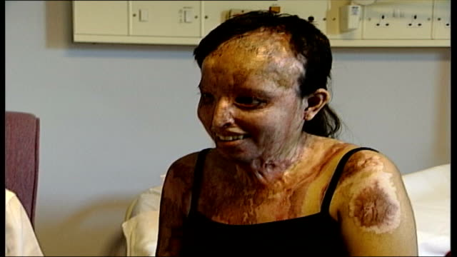 Acid attack victim rebuilding life EXACT Various Sundeep in hospital after operations to rebuilt face