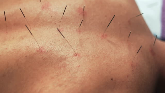 acupuncture therapy - human nervous system stock videos & royalty-free footage