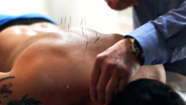 vídeos de stock e filmes b-roll de acupuncture therapy - acupuntura