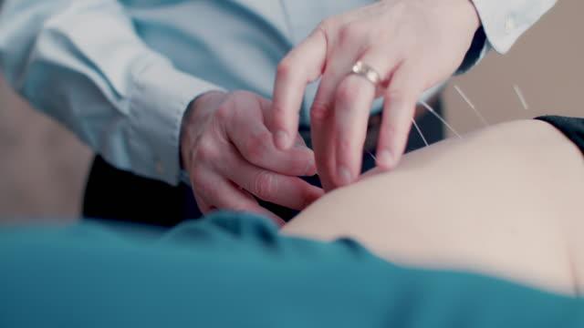 vídeos de stock e filmes b-roll de acupuncturist inserting needle into patient's hip - acupuntura