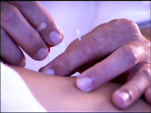 acupuncturist inserting needles - acupuncture stock videos and b-roll footage