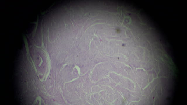 Adenomyosis biopsy under light microscopy zoom in different areas