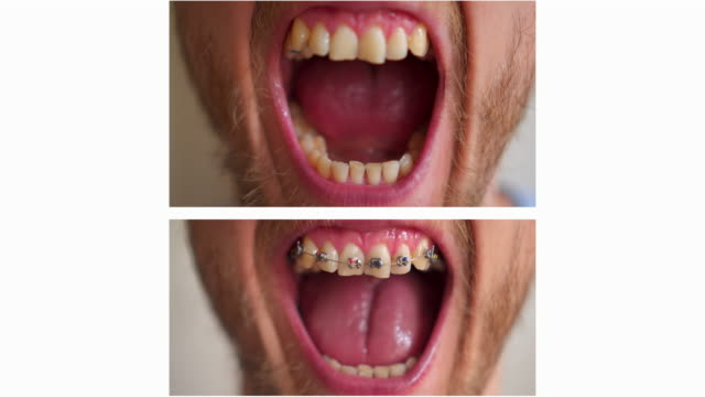 adult young man braces before/after - brace stock videos and b-roll footage