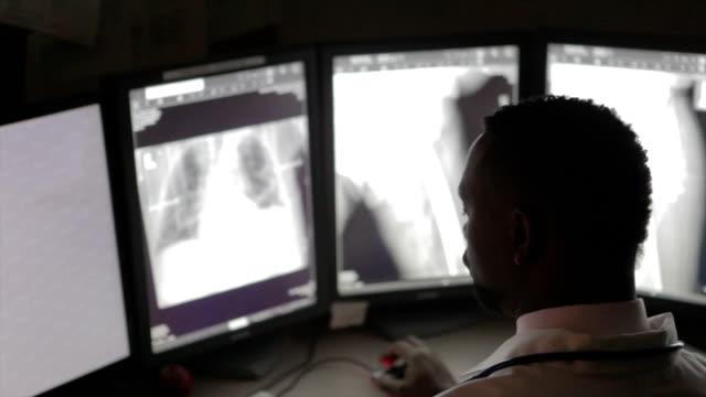 stockvideo's en b-roll-footage met african american radiologist - medische röntgenfoto