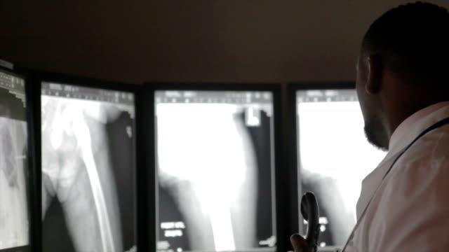 african american radiologo - radiazione video stock e b–roll