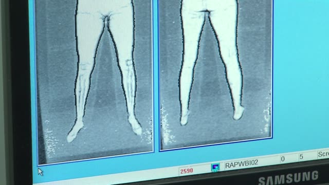 Airport XRay Scan at Chicago O'Hare Airport on December 13 2013 in Chicago Illinois