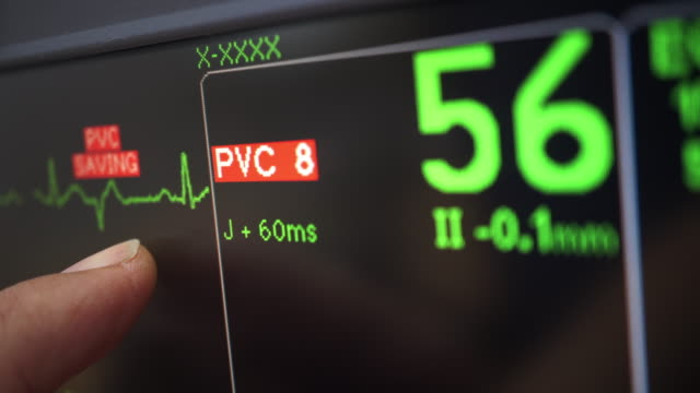 ecg alert - pulse oxymeter stock videos and b-roll footage