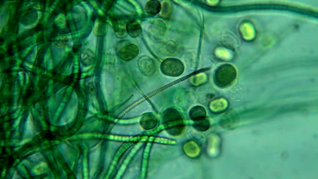 stockvideo's en b-roll-footage met algae - microscopic view - vergroting