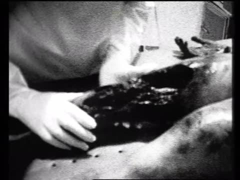 vídeos de stock, filmes e b-roll de alien leg wound - autopsia