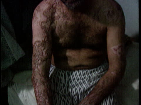 vídeos de stock, filmes e b-roll de alleged chemical attack on marsh arabs itn lib int cms man with burnt skin as result of nerve gas injuries tilt down to burnt arms cms ditto - pântano salgado