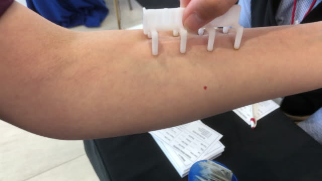 allergy test at a healthcare event in chattanooga tennessee - wissenschaftliches experiment stock-videos und b-roll-filmmaterial