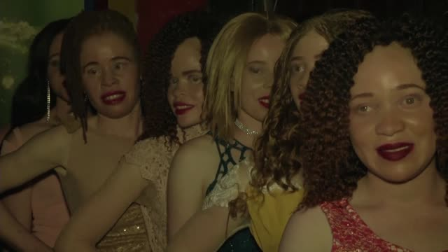 An albino beauty contest takes place in Zimbabwe's capital Harare
