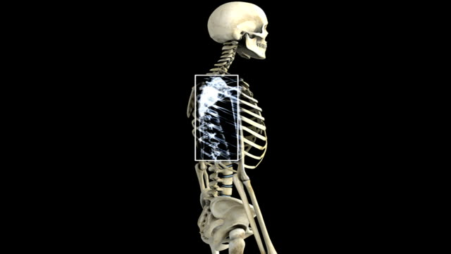 an anti-clockwise rotation of the skeletal system with the thoracic region of the spinal column highlighted which then fades to a detail of the thoracic region, which then pans from right to left. - human vertebra stock videos & royalty-free footage