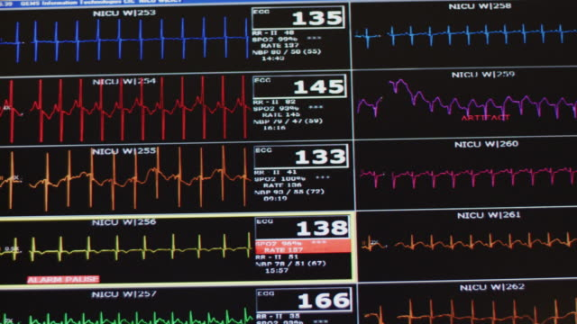 an ekg computer screen in neonatal intensive care unit featuring heart rate and medical monitoring of several premature infants. - real time stock videos & royalty-free footage