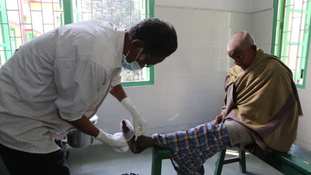 an elderly man with leprosy is getting a deformed foot bandaged in a hospice for people in poverty the hospice is located in the northeast of india... - chirurgenkappe stock-videos und b-roll-filmmaterial