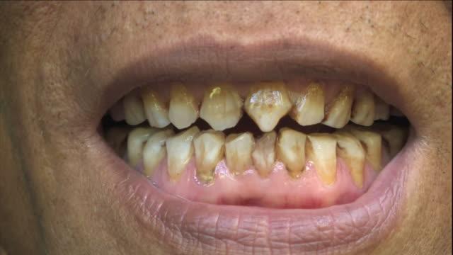 an ethnic indonesian man bears his teeth. - 人間の舌点の映像素材/bロール