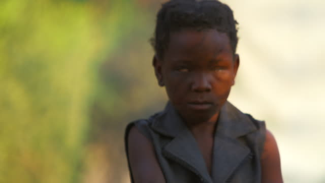 angolan landmine victim stands next to fire close up - victim stock videos & royalty-free footage