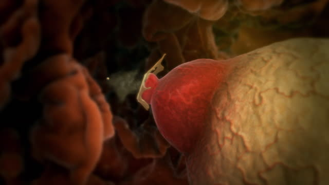 Animated sequence showing an ovary ripening and an egg being released into the fallopian tube.