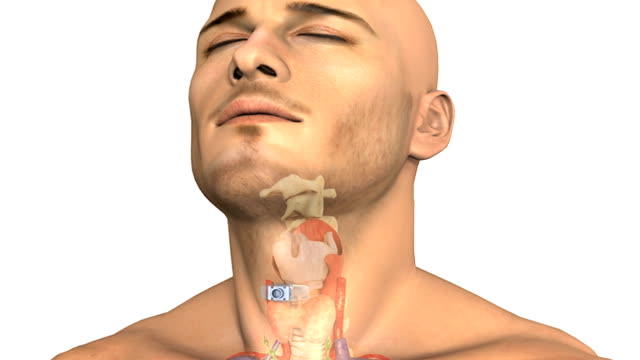vidéos et rushes de animation depicting an airway adapter within the trachea.  this procedure is known as a tracheotomy.  as the camera pans from left to right the elements within the neck get cross sectioned to show the - illustration biomédicale