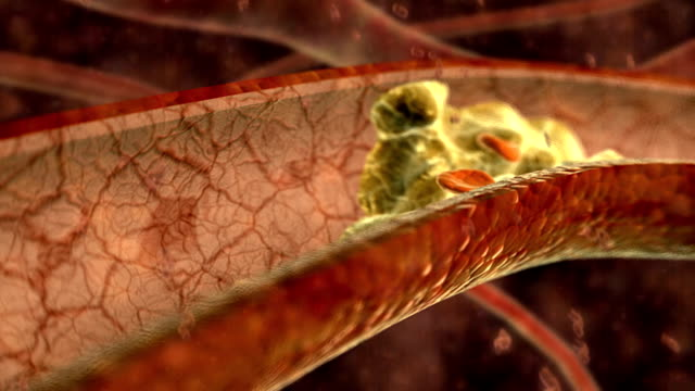 vídeos de stock, filmes e b-roll de animation depicting red and white blood cells flowing through a blood vessel with cholesterol built up on the walls, causing a blood flow problem. - artéria