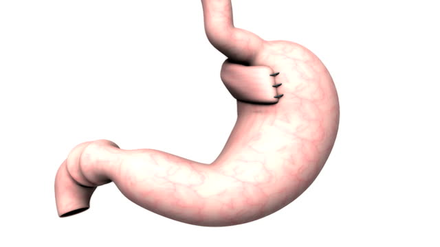 animation depicting the surgical plication of the fundus of the stomach around the lower end of the esophagus. the camera zooms to the stomach as it rotates. - biomedical illustration video stock e b–roll