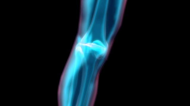 vídeos de stock, filmes e b-roll de animation of the leg focusing on the knee area, in x-ray style. the camera travels 180 degrees clockwise around the knee. - tíbia osso da perna