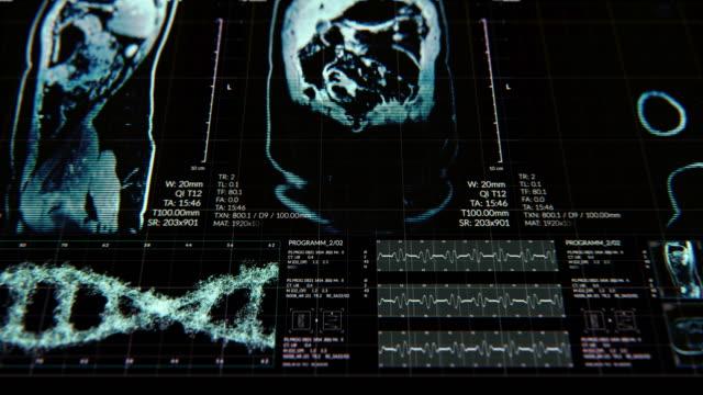 vídeos de stock, filmes e b-roll de animação da interface do usuário hud com análise corporal e dna movendo-se em fundo escuro para o conceito futurista cibernético com grãos processados - lobo temporal
