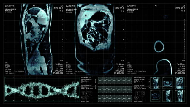 animation of user interface hud with body analysis and dna moving on dark background for cyber futuristic concept with grain processed - diagnostic medical tool stock videos & royalty-free footage