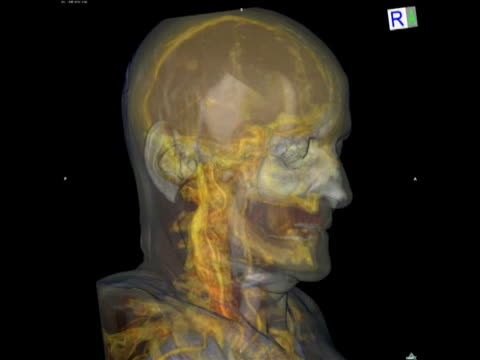 Animation showing a 3D CT scan of the head of an elderly man