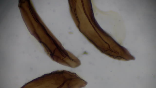 anopheles eggs under light microscopy - parasitic stock videos & royalty-free footage