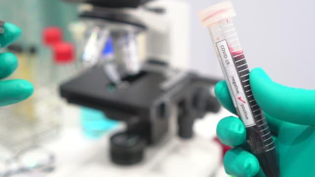 antiviren- und blutreagenzglas mit dem coronavirus - stammzelle stock-videos und b-roll-filmmaterial