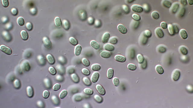 vídeos y material grabado en eventos de stock de aphanothece stagnalis cyanobacteria - micrografía de luz