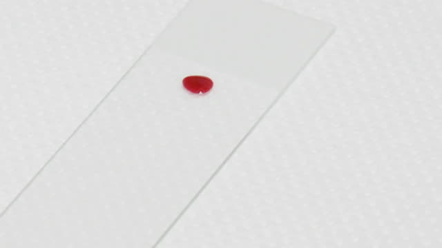 Applying drop of blood on glass slide and the erosion of its cover glass