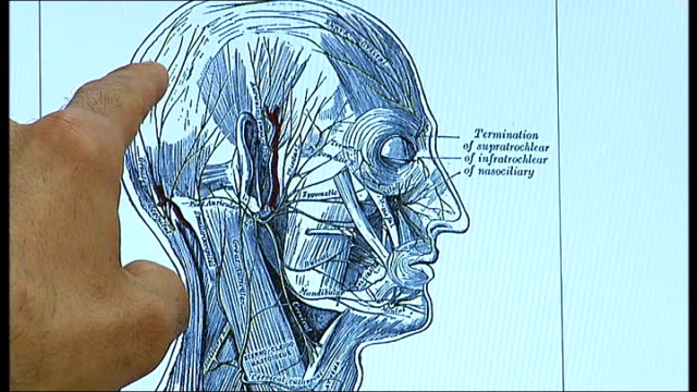approves botox for migraine treatment; london: charing cross hospital: int neurologist, dr mark weatherall, showing reporter computer screen diagram... - headache stock videos & royalty-free footage