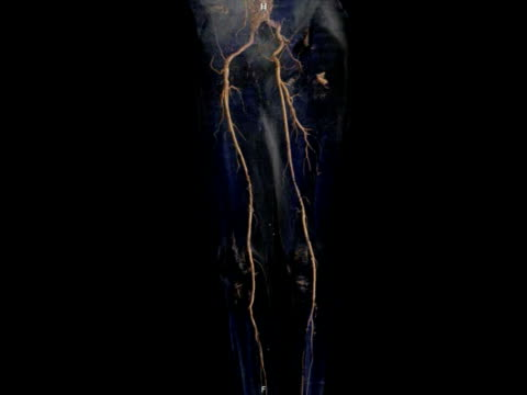 arteries of the legs, 3d angiogram. - arteria video stock e b–roll