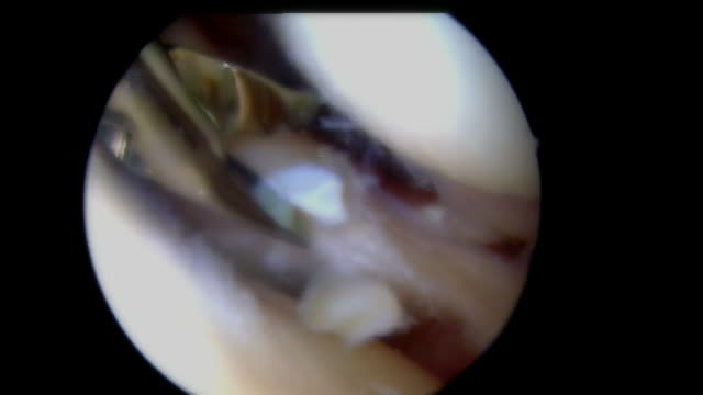 Arthroscopic Meniscus Surgery With Shaver Instrument