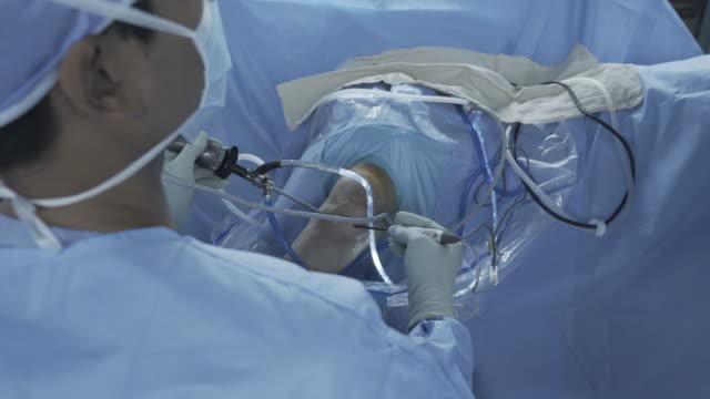vídeos de stock e filmes b-roll de arthroscopy surgery - bata cirúrgica