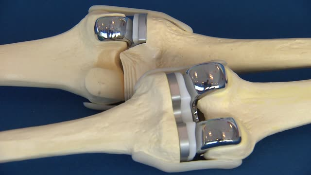 artificial knee for replacement surgery - 人工的点の映像素材/bロール