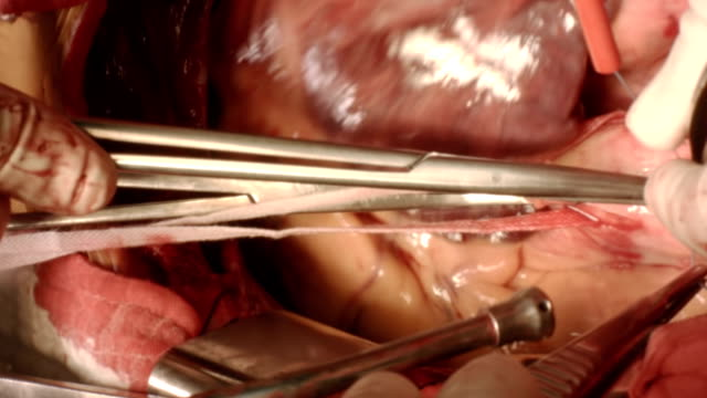 ascending aortic cannulation - left auricle stock videos and b-roll footage