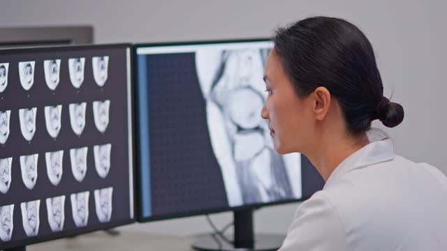 asian female doctor of radiology looking at the mri images of the knee scan - x ray image stock videos & royalty-free footage