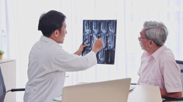 asian man medical treatment rendered by the film's x-ray to image patients in the examination room, senior asian man to get a health check by medical professionals, senior asian man to get a health check by medical professionals. - medical examination room stock videos & royalty-free footage