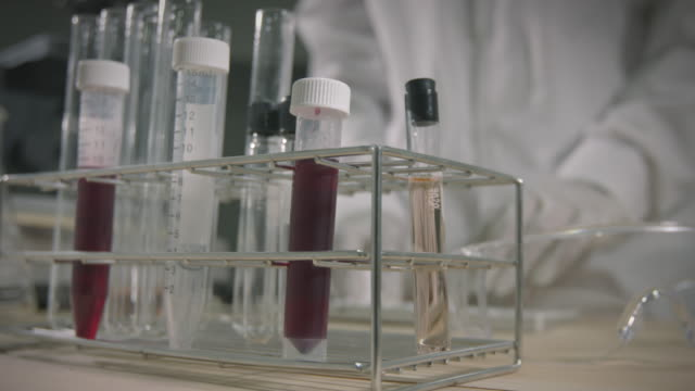 asian scientist is analysis blood in test tube and research chemical test in a laboratory. - medical sample stock videos & royalty-free footage