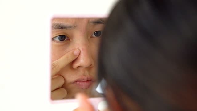 asian woman observing her pimple via hand mirror - skin feature stock videos & royalty-free footage