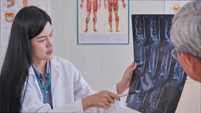 asian women medical treatment rendered by the film's x-ray to image patients in the examination room, senior asian man to get a health check by medical professionals, senior asian man to get a health check by medical professionals. - medical examination room stock videos & royalty-free footage