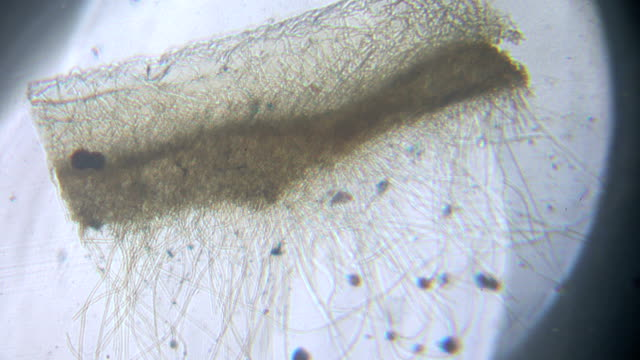 aspergillus under microscopy - fungus part stock videos and b-roll footage