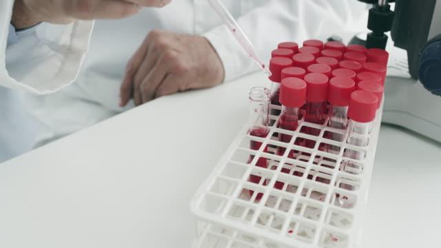 assembling all the samples - esami del sangue video stock e b–roll