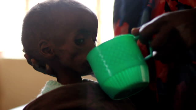 at un hospital undernourished boy drinking water on july 30, 2011 in dadaab, kenya - hungry stock videos & royalty-free footage