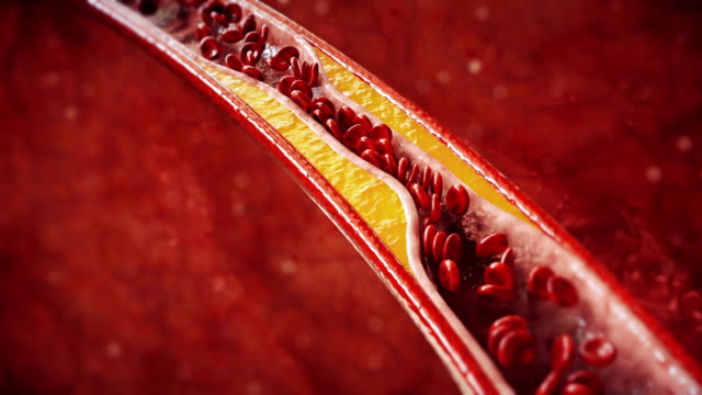 atherosclerosis | coronary artery disease - globulo rosso video stock e b–roll