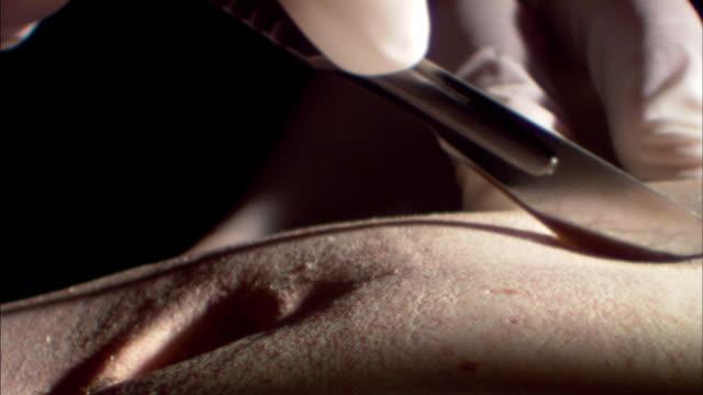 vídeos de stock, filmes e b-roll de autopsy - autopsia